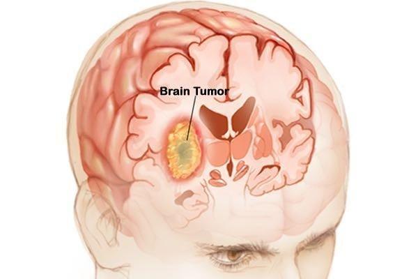 brain tumor doctor in dehradun