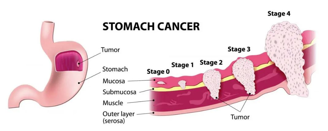 stomach cancer symptoms and causes